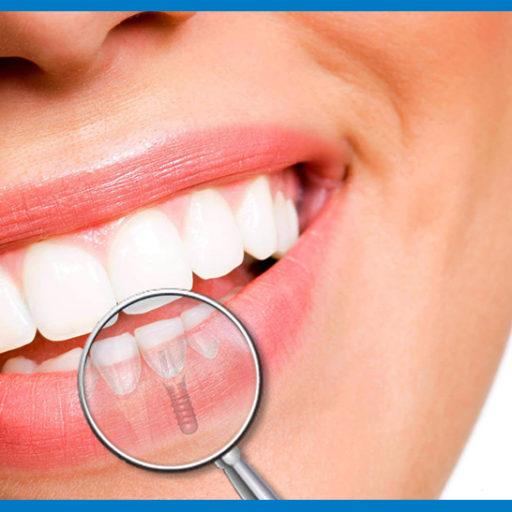 sorriso con impianto dentale