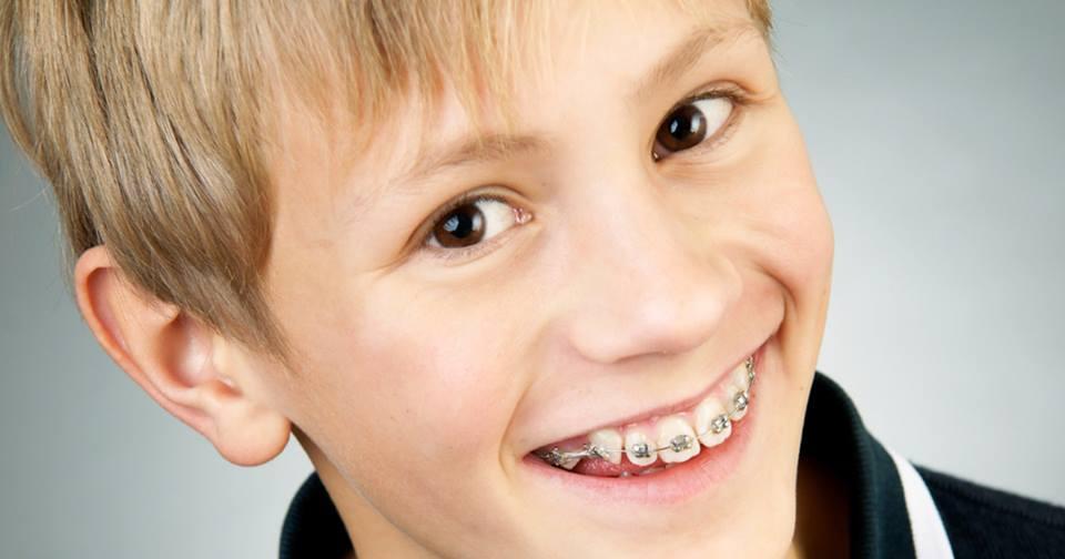 bambino che sorride con apparecchio ortodontico fisso