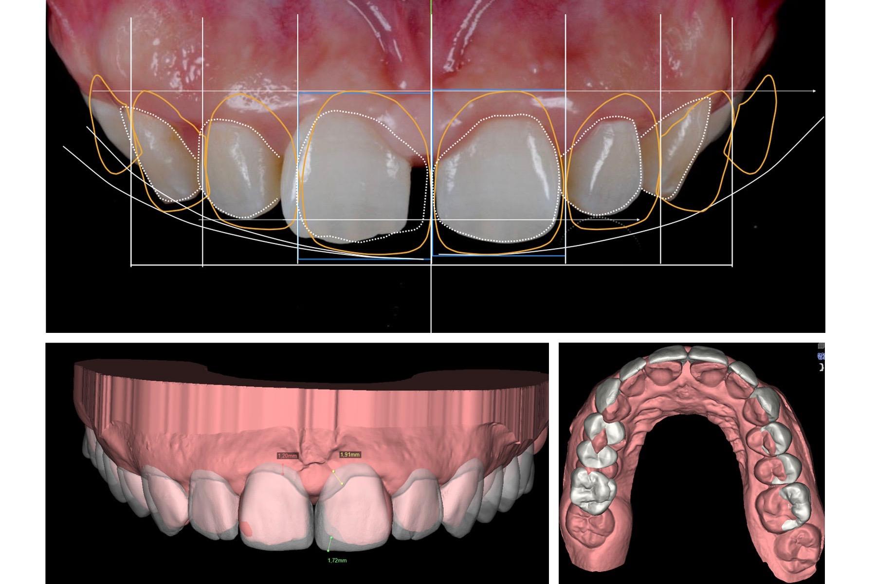 anteprima digitale dei denti realizzata con tecnologia CARESTREAM CS 3600 DIGITAL SMILE DESIGN