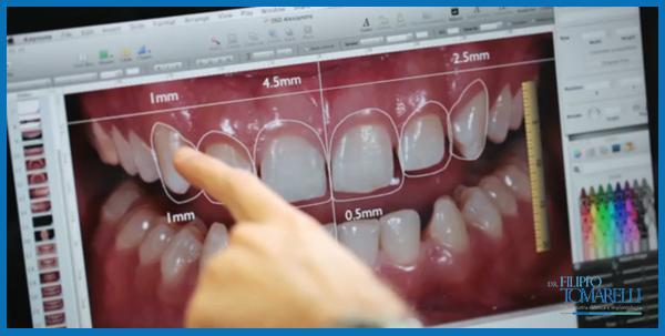 scanner dentatura