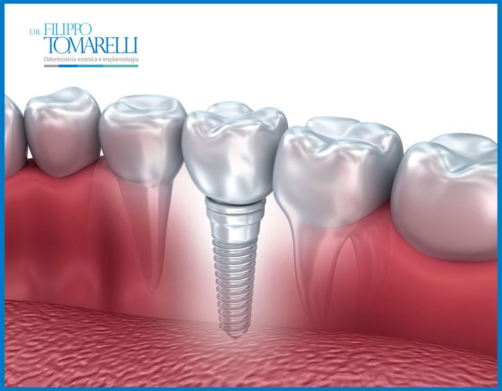 impianto dentale osteointegrato
