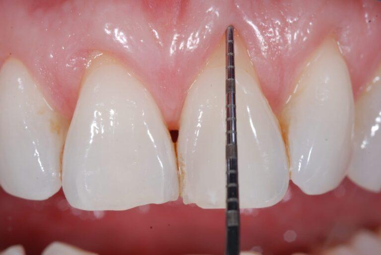 gengiva ritirata su incisivi a causa della parodontite