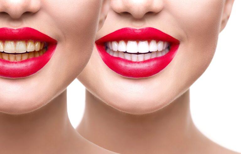 trattamento di sbiancamento dentale prima e dopo