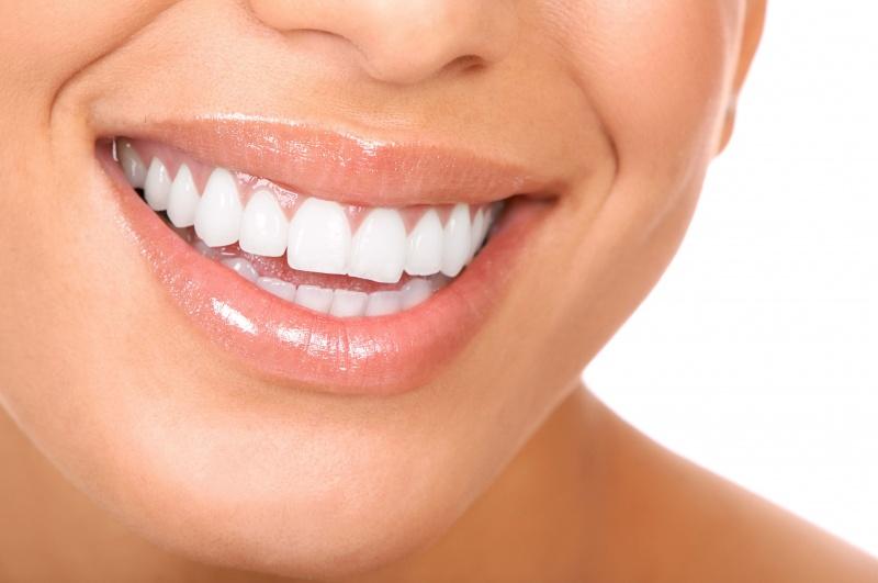 conservativa estetica dentale